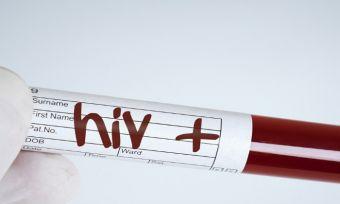 HIV positive stick